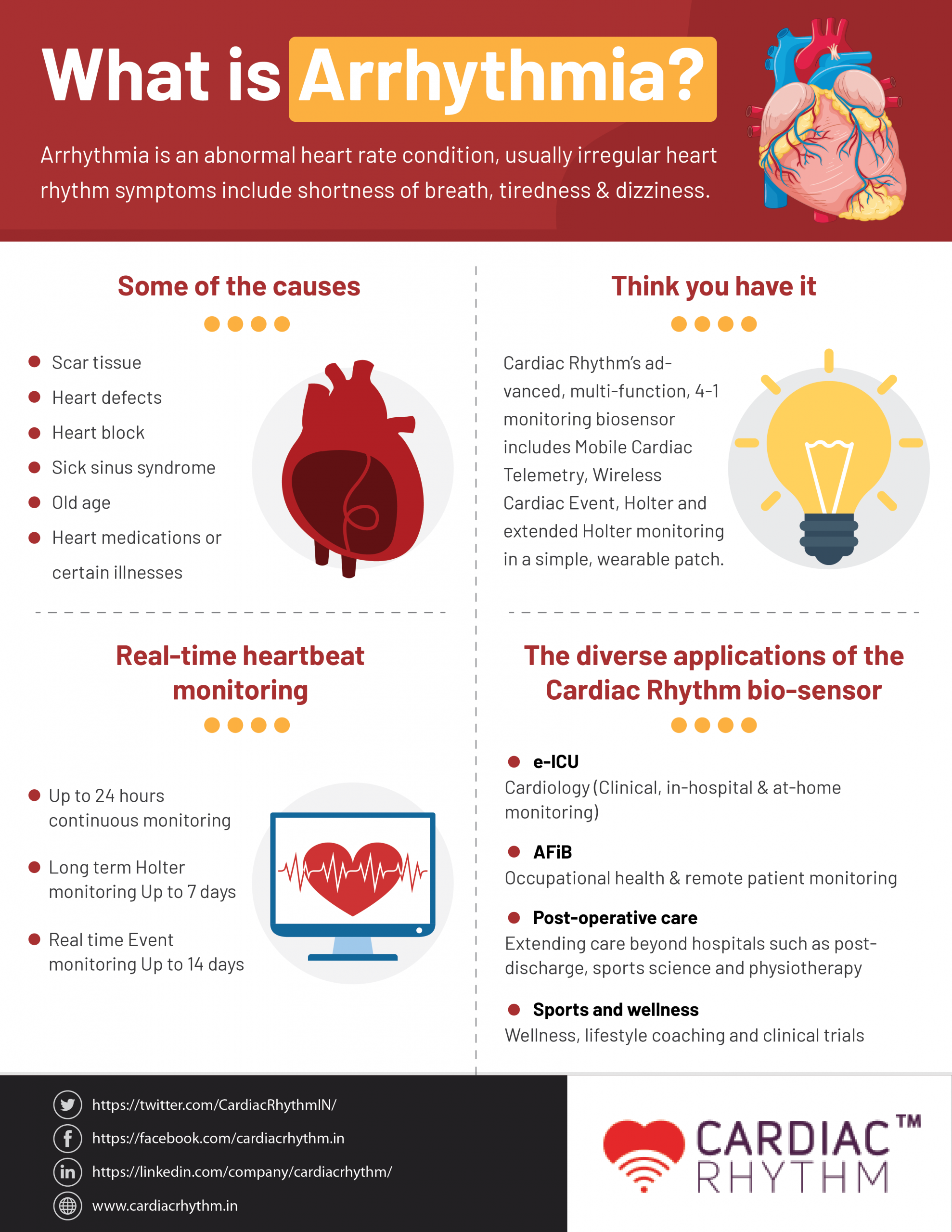What is Arrhythmia?